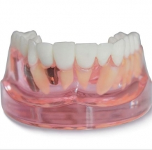 Implant Model ceramic bridge +kroon