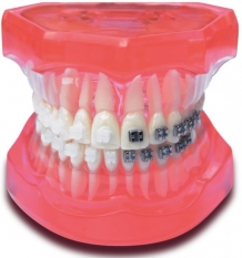 Orthodontie model Mix